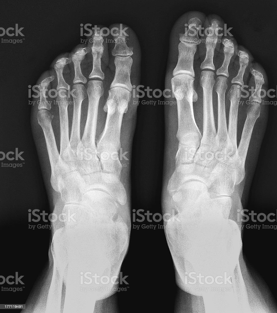 X-ray of the foot royalty-free stock photo