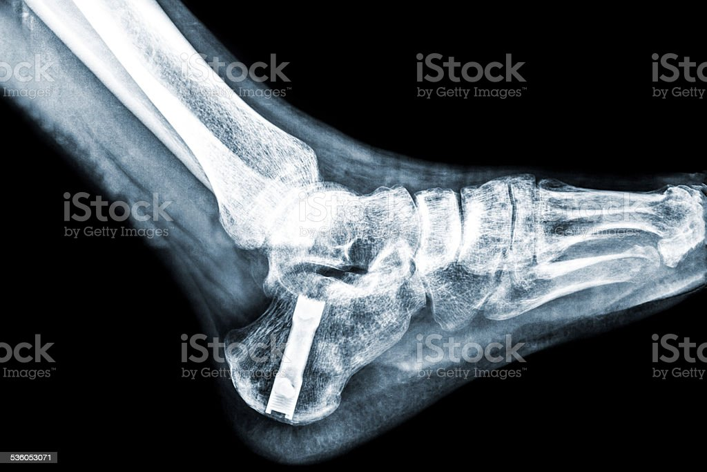Royalty Free Comminuted Fracture Pictures Images And Stock Photos