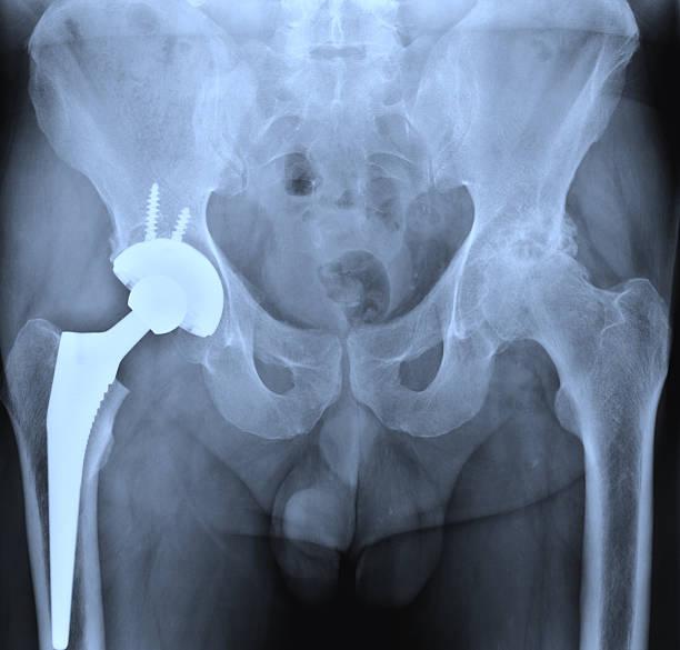 X-ray of the hip prostesis stock photo