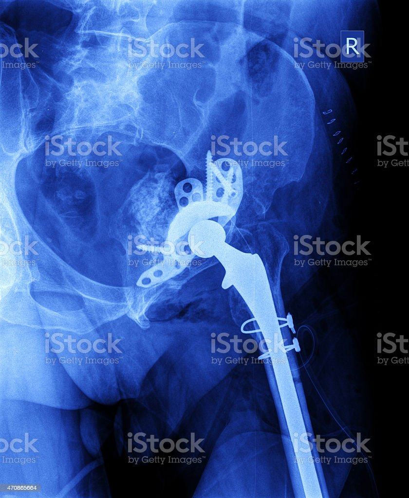 X-ray of the hip prosthesis stock photo