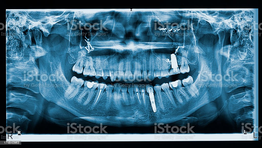 X-ray of the human mouth showing dental implants stock photo