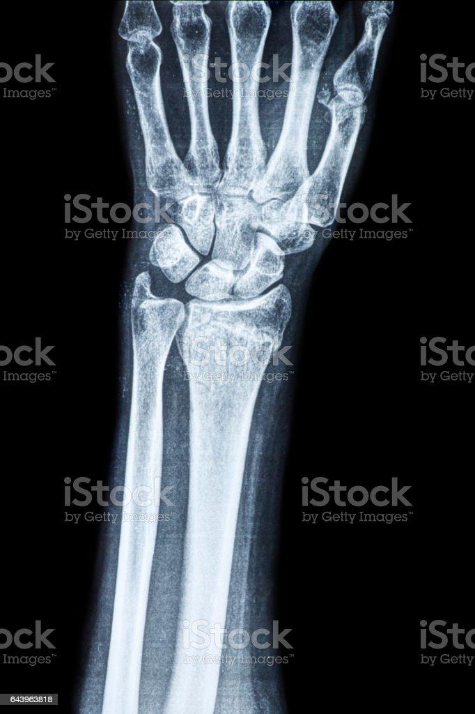 X-ray of the wrist and human radius stock photo