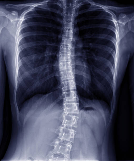 rayon x de la colonne vertébrale de thoracic-lumbar dans le fond foncé. scoliose thoraco-lumbar. - sternum photos et images de collection