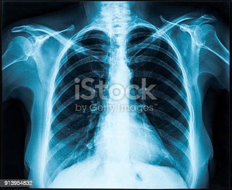 istock X-ray of thorax 913954832