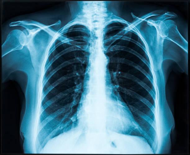 radiografía de tórax - pecho torso fotografías e imágenes de stock