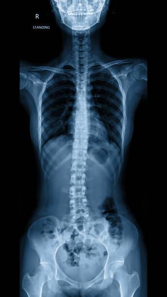 어두운 배경에서 전체 척추의 엑스레이. - x 레이 뉴스 사진 이미지