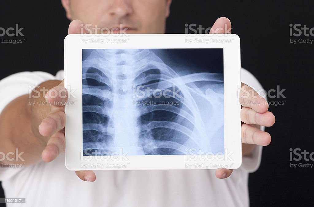 X-ray on the digital tablet stock photo
