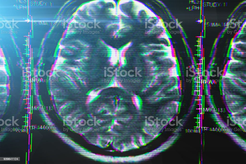 X-ray or MRI brain scan with glitch effect. Abstract concept of Alzheimer disease and other health problems with head, brain, memory and mental problems stock photo