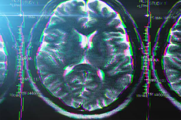 x-ray of de mri hersenscan met glitch effect. abstract concept van de ziekte van alzheimer en andere gezondheidsproblemen met hoofd, hersenen, geheugen en psychische problemen - dementia stockfoto's en -beelden