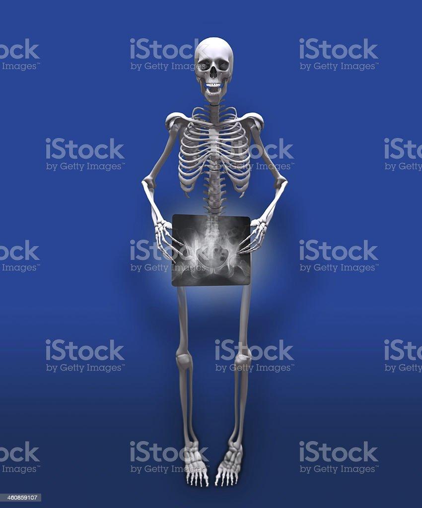 X-ray Pelvis Man royalty-free stock photo