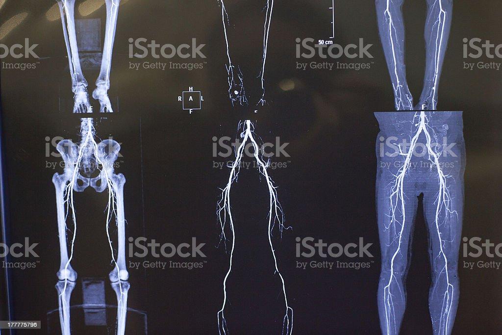 X-ray photograph of human organs royalty-free stock photo