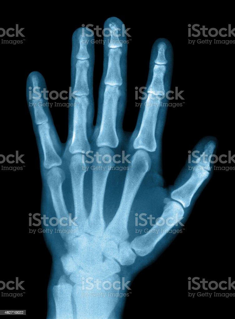 X-ray photograph stock photo