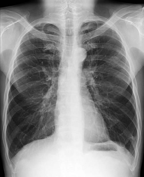 X-ray Bilder-Brust – Foto