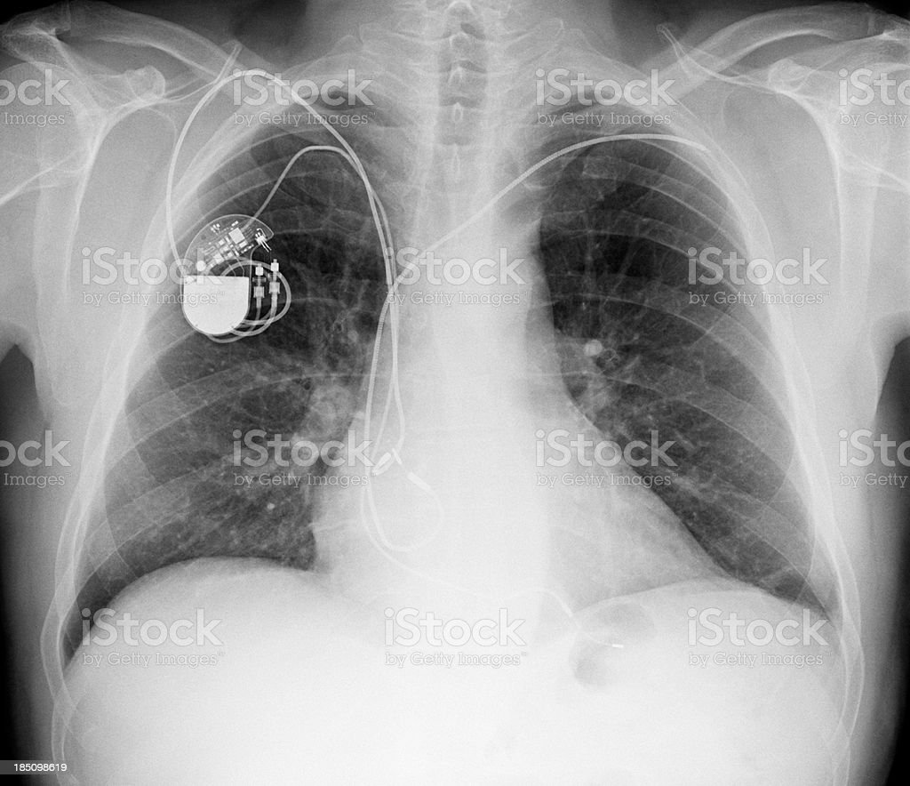 Xray Bilder Brust Mit Schrittmacher Verwenden Stock-Fotografie und ...