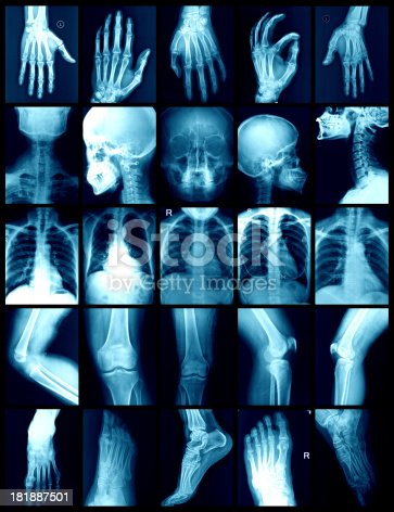 istock x-ray 181887501