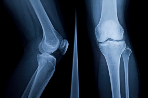 Osteomielite: che cos'è, sintomi e terapia