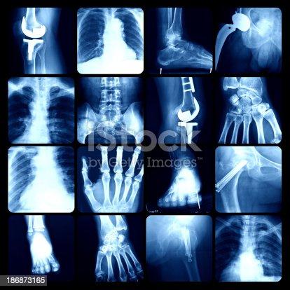 istock x-ray 186873165