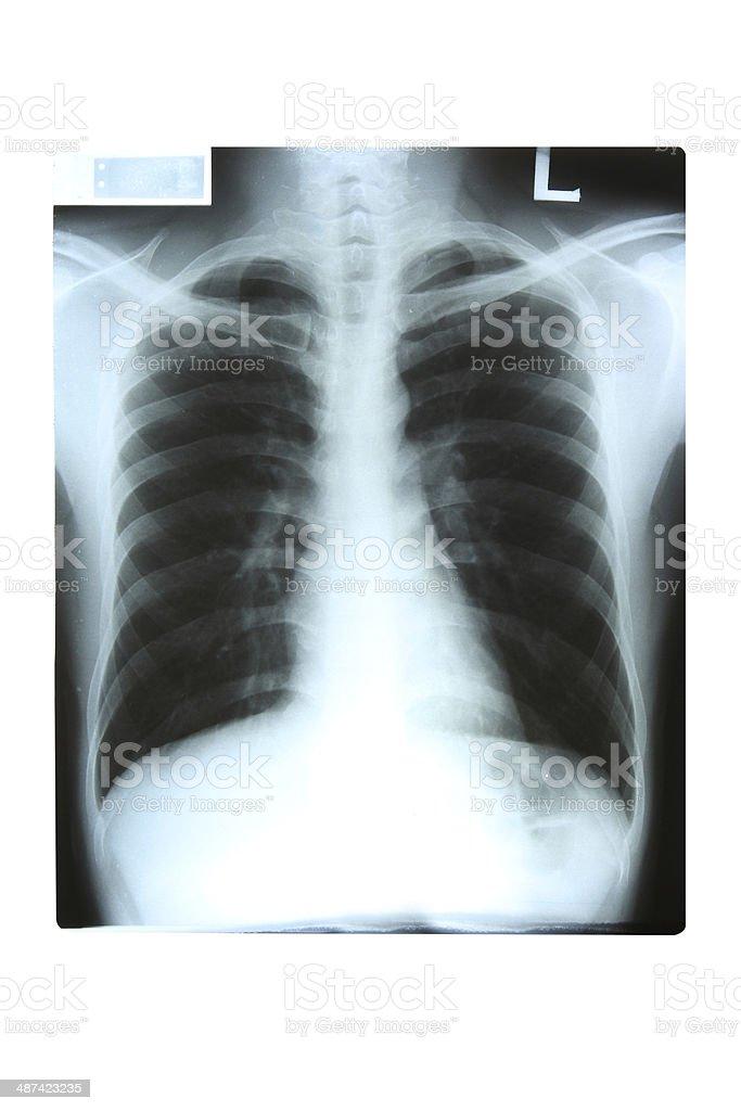 X-Ray stock photo