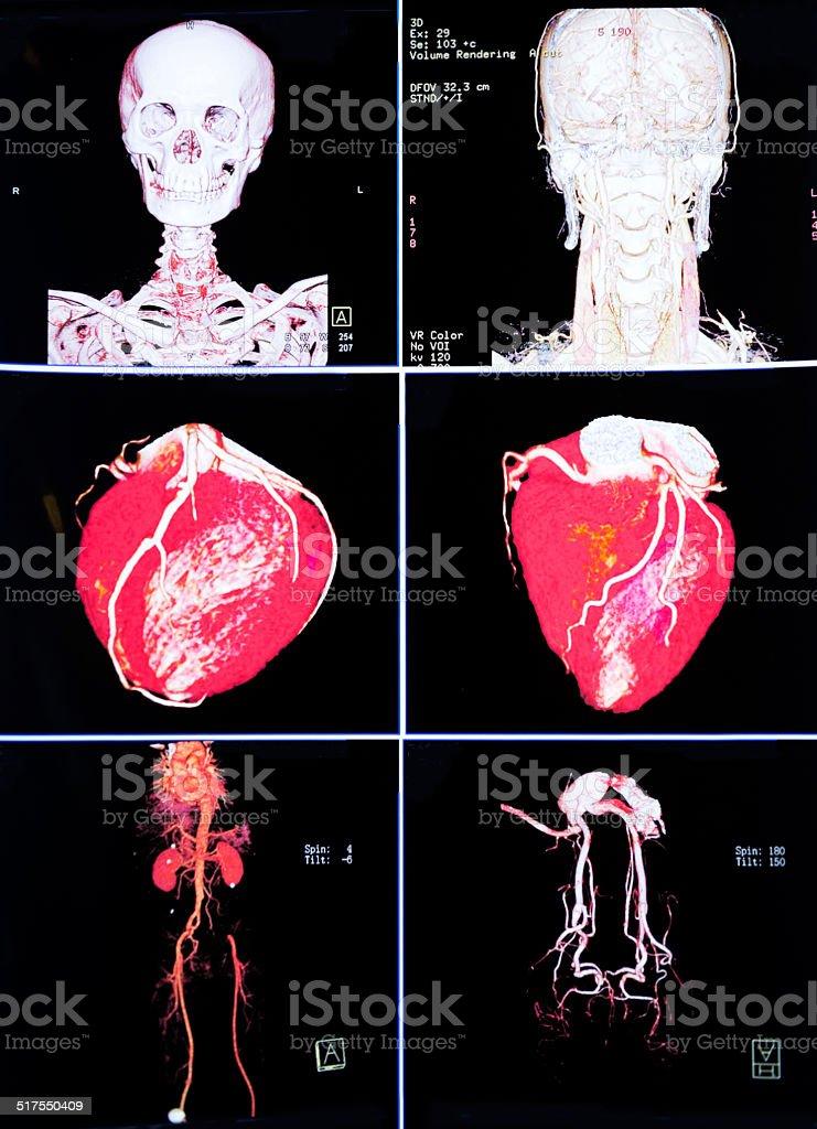 x-ray - foto de acervo