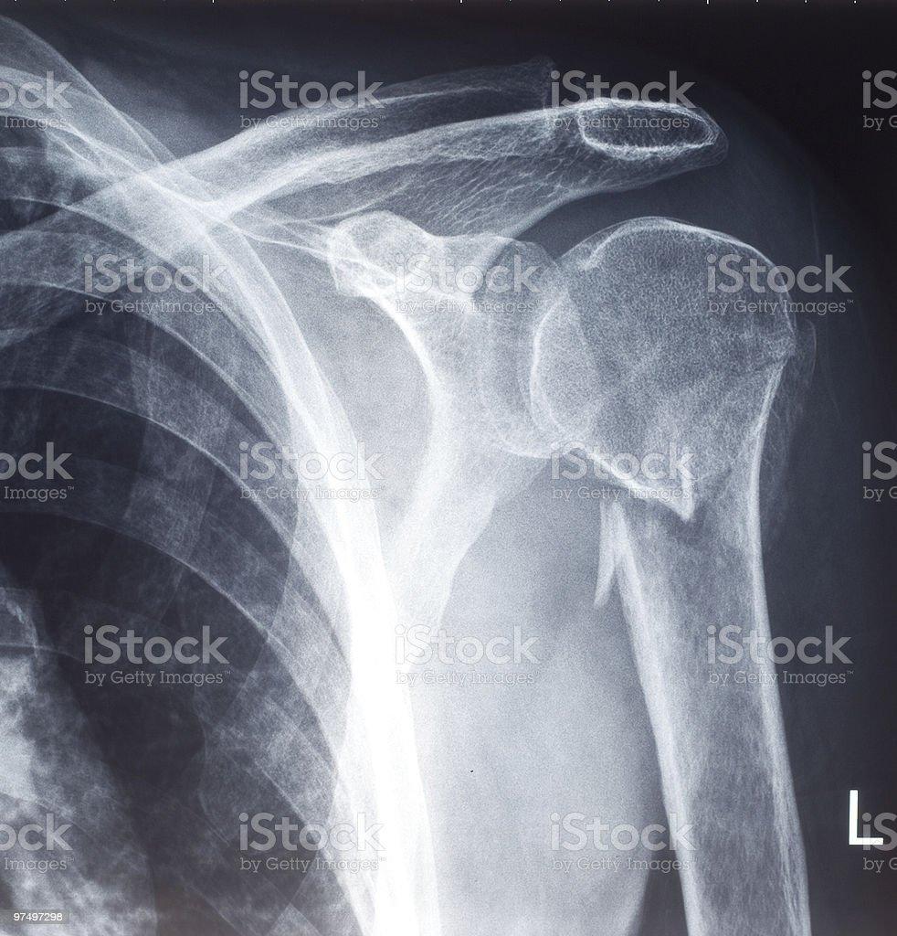 X-ray royalty-free stock photo