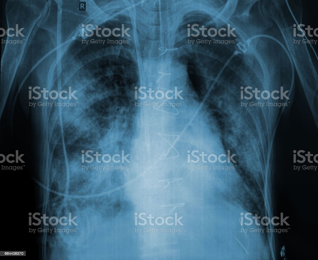 X-ray picture of a patient with lung disease stock photo