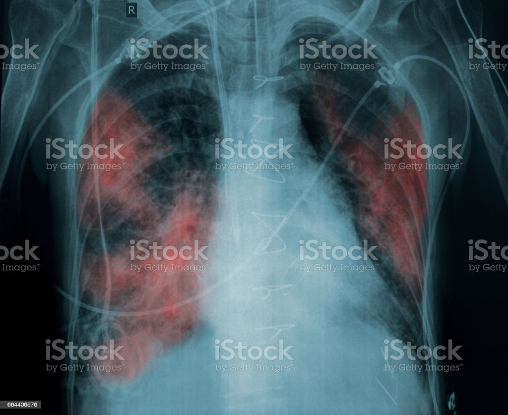 X-ray picture of a patient with lung pathology stock photo