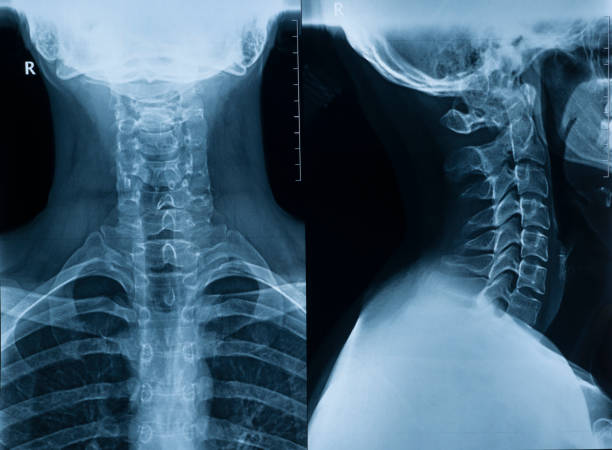 X-ray picture of the cervical spine of a man in two projections in full view and profile stock photo