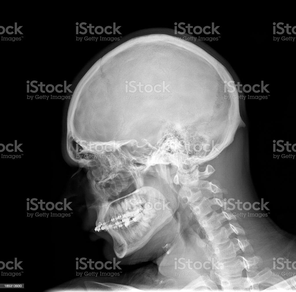 Dorable Cervical Spine Xray Anatomy Image - Anatomy Ideas - yunoki.info