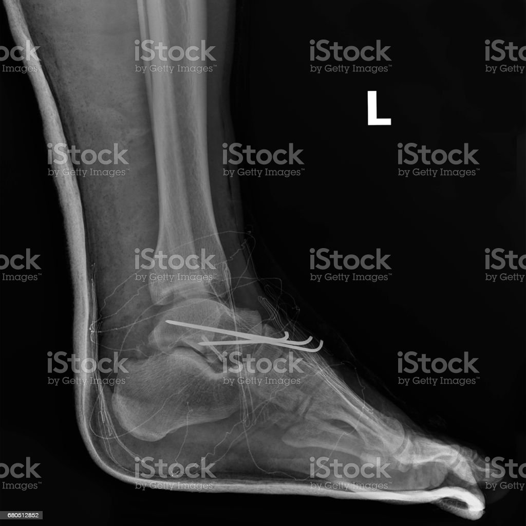 X-ray postoperative with medical screws installed and nails in the foot. stock photo