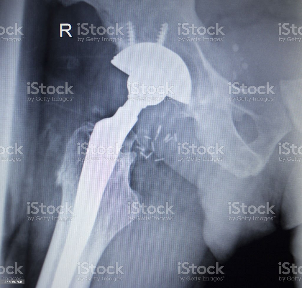 X-ray scan  image of hip joint replacement orthopedic implant stock photo