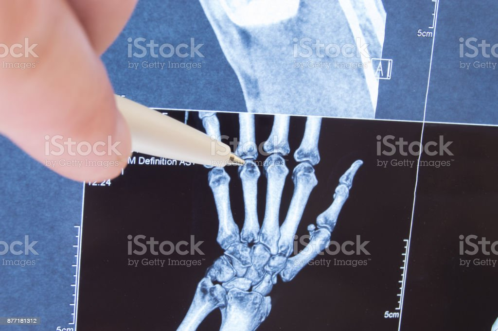 X-ray scan of hand, bones and finger joints. Doctor pointed on finger small joints, where pathology is detected, such as arthritis, rheumatoid,fracture. Diagnosis of joint diseases by radiology stock photo