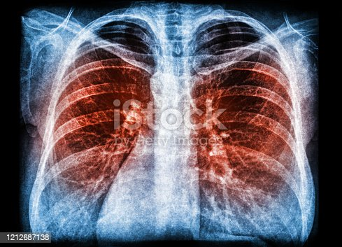 X-ray scan of pneumonia lung infection