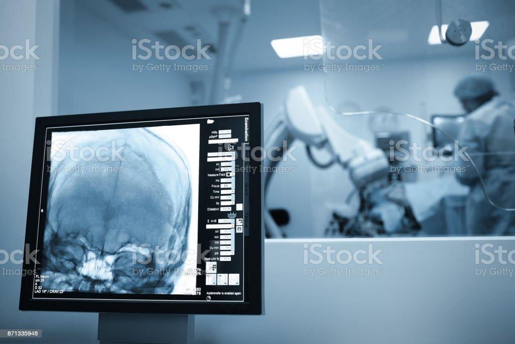 Röntgen-Scan des Gehirns Patienten während der Operation – Foto