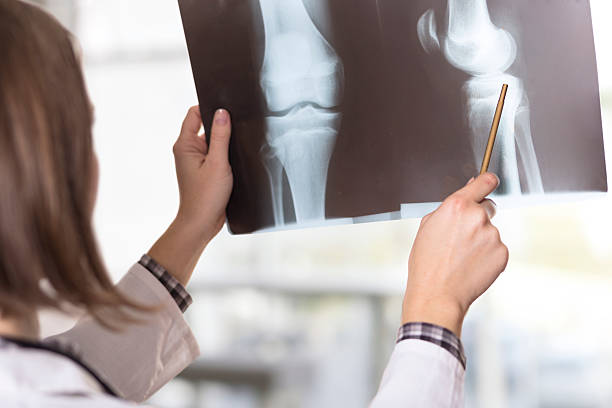 x-ray scan - human knee stock photos and pictures