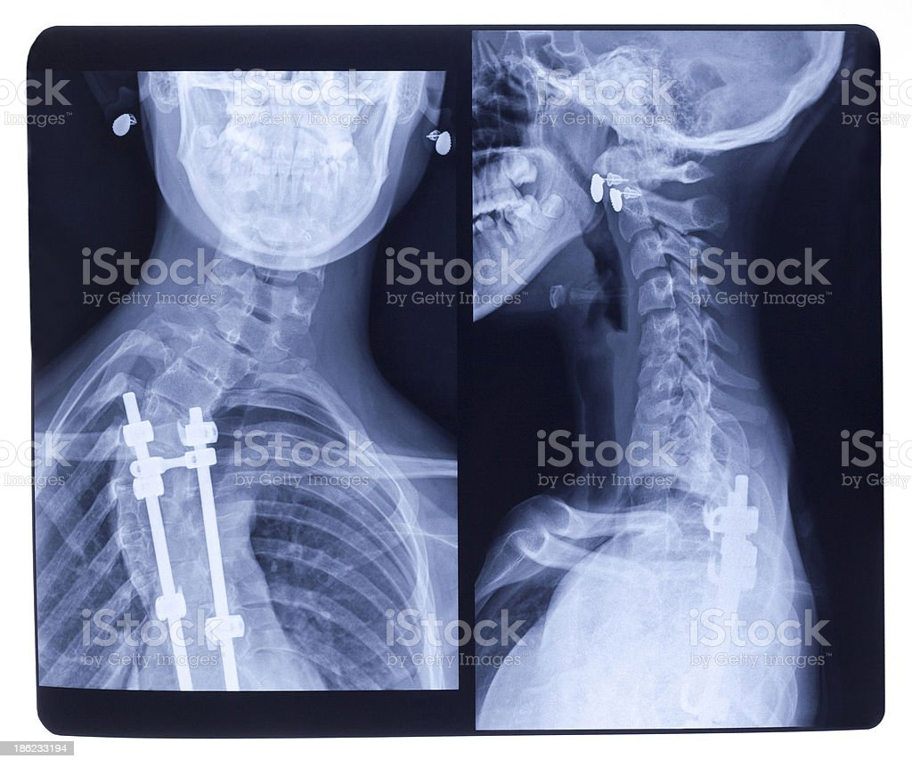X-ray, Scoliosis royalty-free stock photo