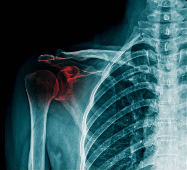 x-ray shoulder fracture in blue tone - shoulder surgery stock photos and pictures