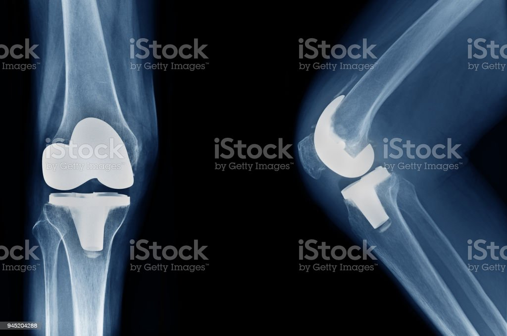 x-ray show knee joint replacement / knee arthroplasty front view and side view stock photo