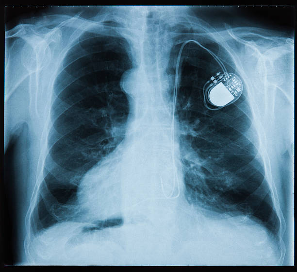 X-ray showing a pace maker in the chest X-ray picture - Chest with pacemaker pacemaker stock pictures, royalty-free photos & images
