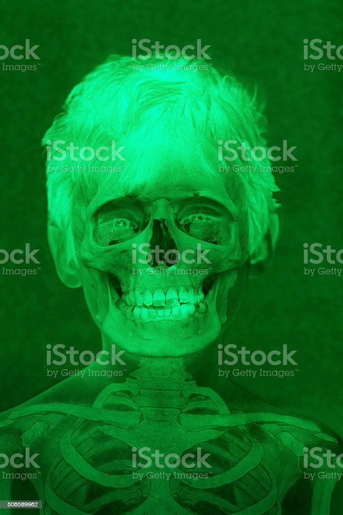 X-ray skeleton of a boy. stock photo