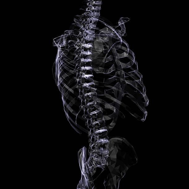 X-Ray Skeleton stock photo