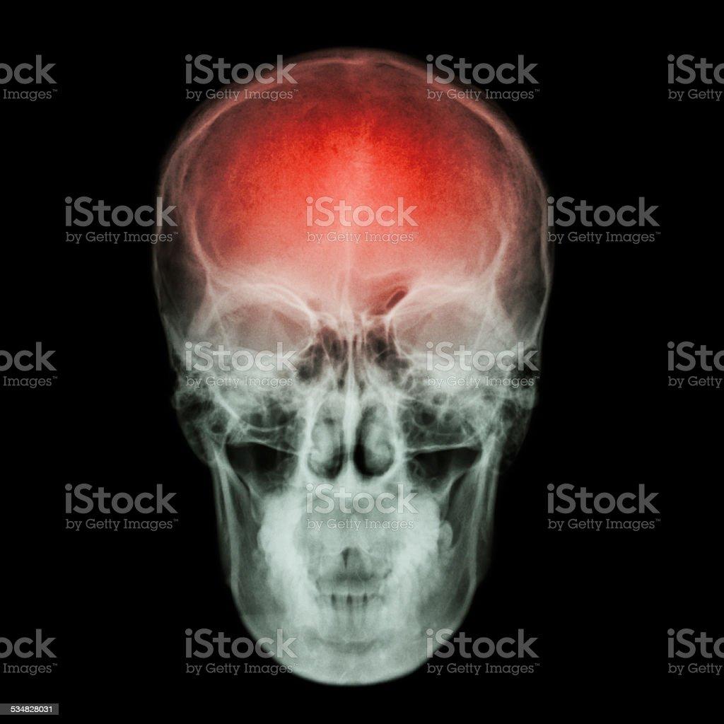 Xray Cráneo Accidente Cerebrovascular Stock Foto e Imagen de Stock ...
