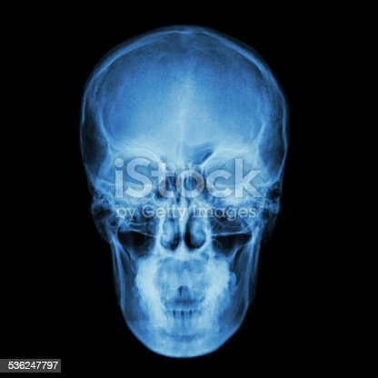 istock X-ray skull and Stroke ( cerebrovascular accident (CVA) ) 536247797