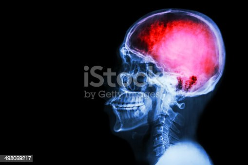 istock X-ray skull & cervical spine (lateral) with
