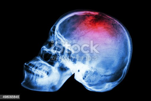 istock X-ray skull lateral with