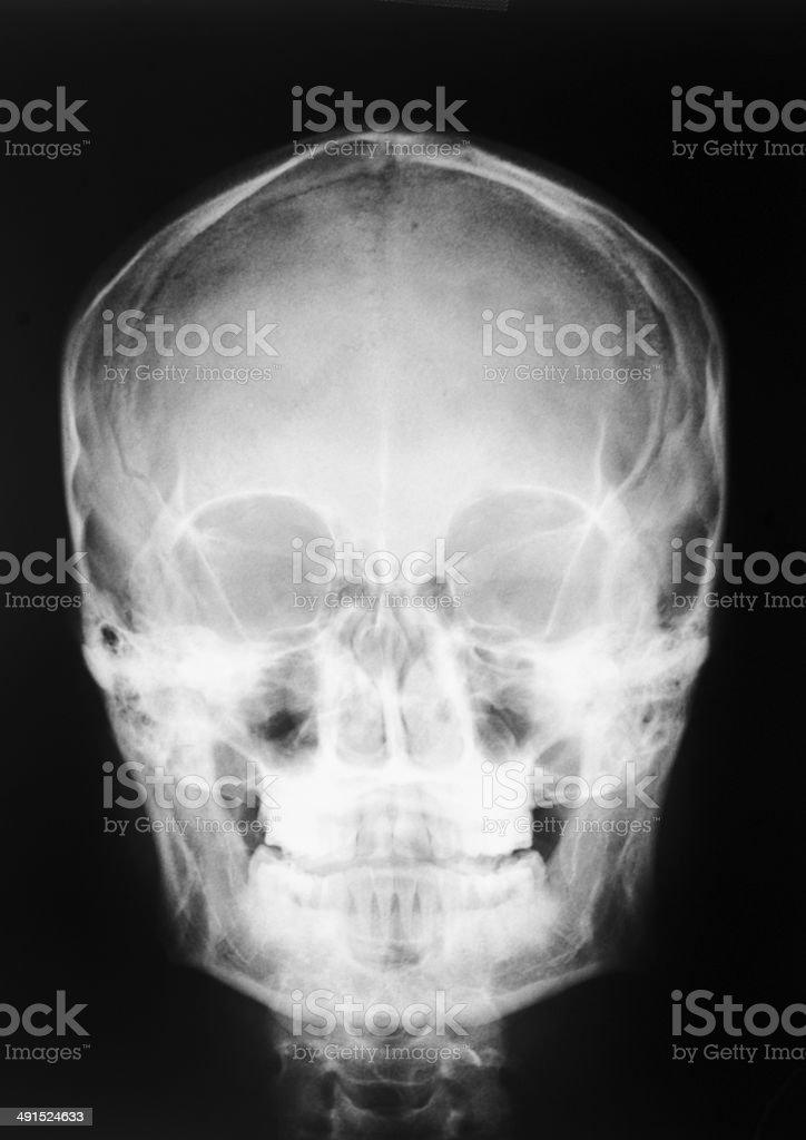 Xray Skull Stock Photo & More Pictures of Anatomy | iStock