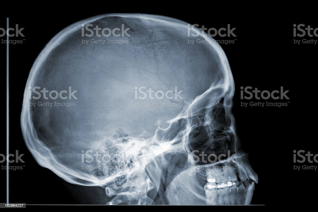 Xray Skull Side Profile Stock Photo & More Pictures of Anatomy | iStock