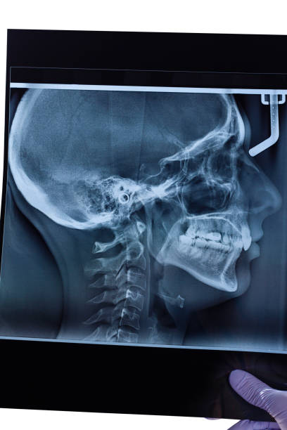 X-ray Skull Side View stock photo