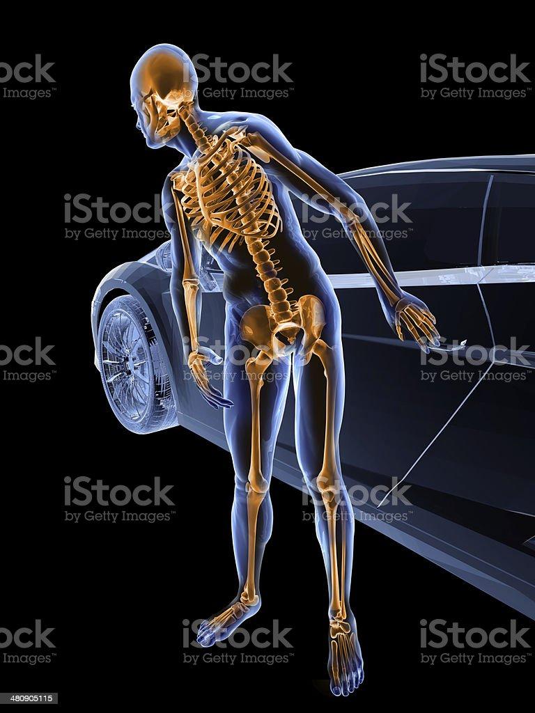 X-Ray Spy Camera and Car Theft Scene royalty-free stock photo