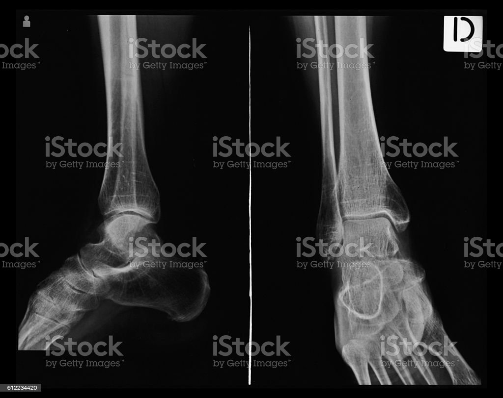X-ray tarsal, ankle and foot - foto de acervo