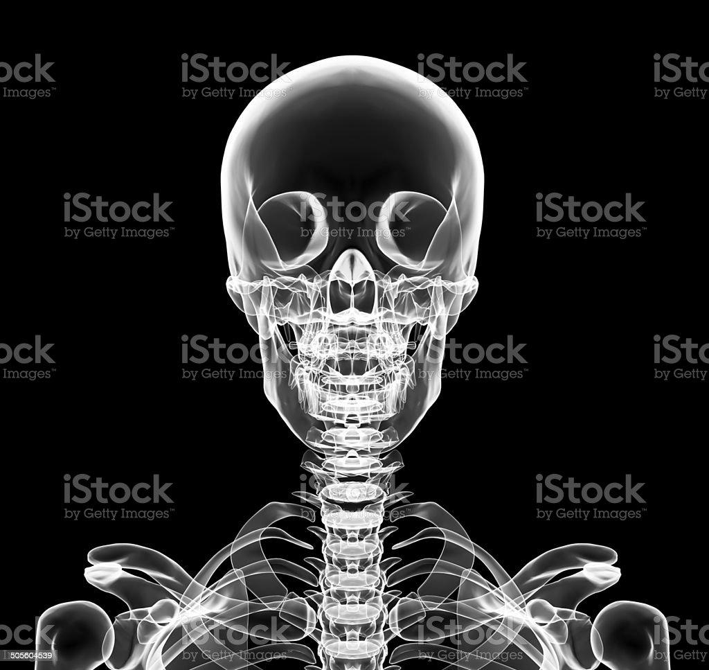 Xray La Parte Superior Del Pecho Incluyó Cráneo - Fotografía de ...